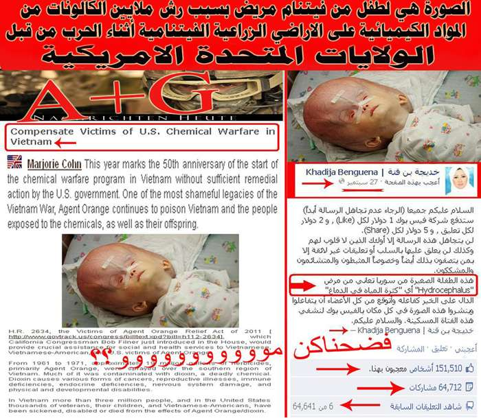 مذيعة قناة الجزيرة خديجة بن قنة تنشر صورة لطفل مريض من الفيتنام على أنه في سوريا اسلام تايمز