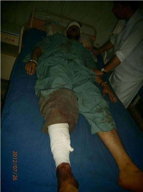 پارا چنار دھماکوں میں زخمی ہونے والے 12 افراد پشاور منتقل