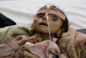 UN Warns Widespread Malnutrition among Yemeni Children under Saudi Blockade