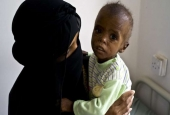 17 Million Yemenis Food Insecure under Saudi Siege