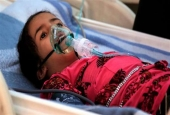 Yemeni child suffering from diphtheria at a hospital in the capital Sana'a.jpg