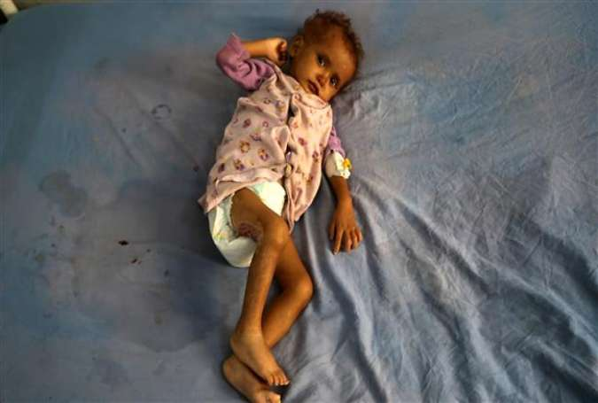 A malnourished Yemeni child receives treatment at a hospital in the Yemeni port city of Hudaydah, December 19, 2017. (Photo by AFP)