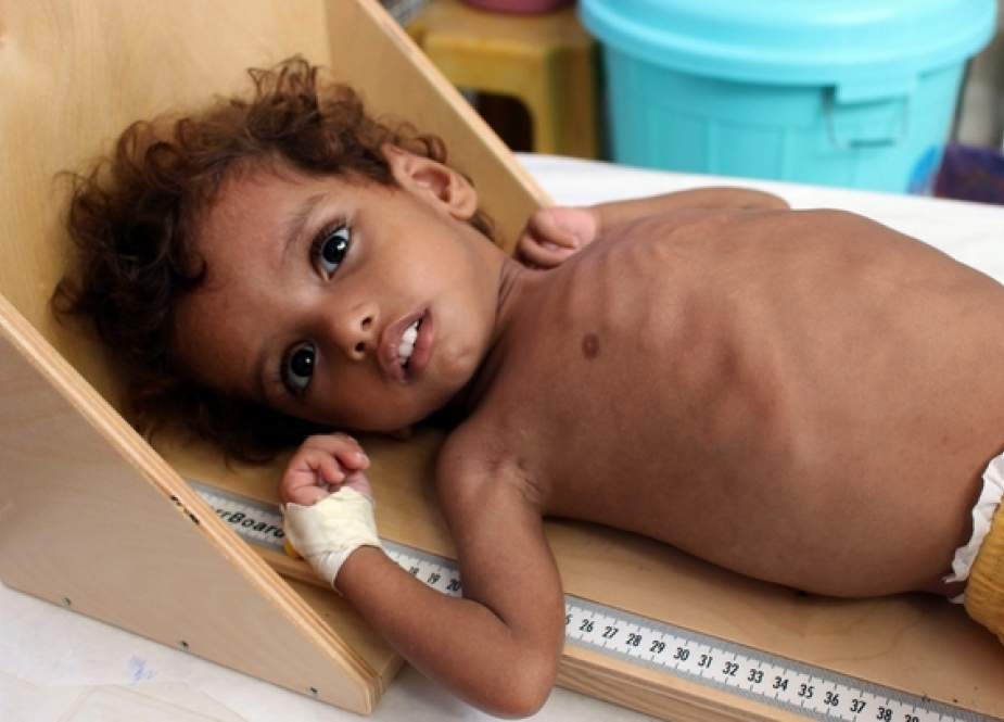 Children are among the first victims of starvation in the Yemen