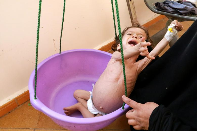Malnourished Zakaria Yahya, 21 months old, is weighed in a hospital in the northwestern city of Saada, November 21, 2018. The survey, carried out by Yemeni and international experts in October according to an international system for classifying food cri