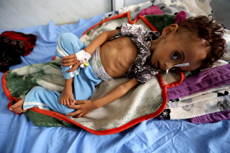 Malnourished 1-year-old Abdulqudous Hadi lies on a bed at a malnutrition treatment ward at al-Thawra hospital in Hodeidah, November 3, 2018.
