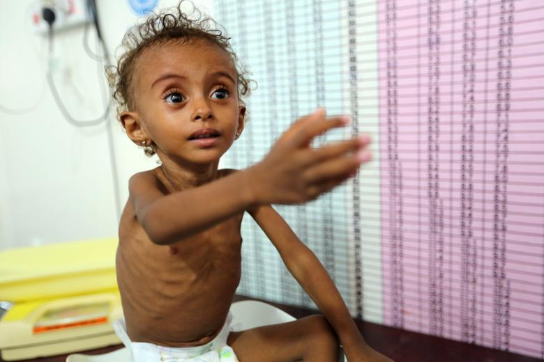 Malnourished Ferial Elias, 2, gestures as she is being weighed at a malnutrition treatment ward at al-Thawra hospital in Hodeidah, November 3, 2018.