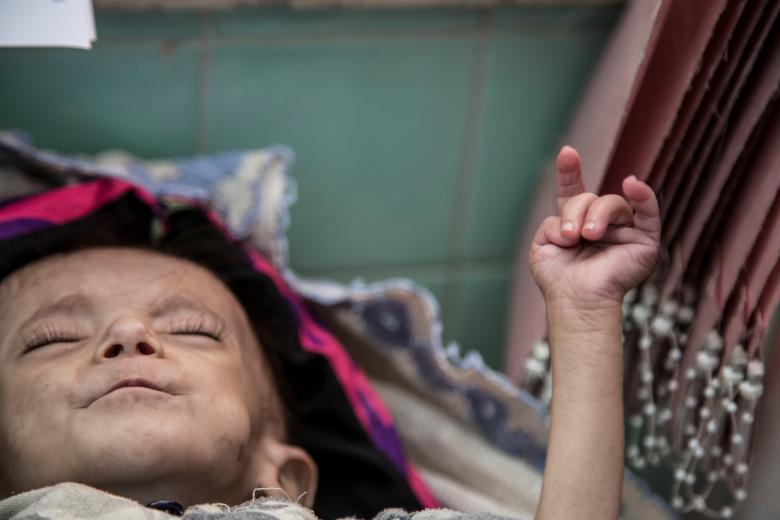 Ali Yakya Ali, 5, suffering from severe acute malnutrition edematous, which causes an excessive amount of water fluid in the tissues, is seen in Saana, November 11, 2018.