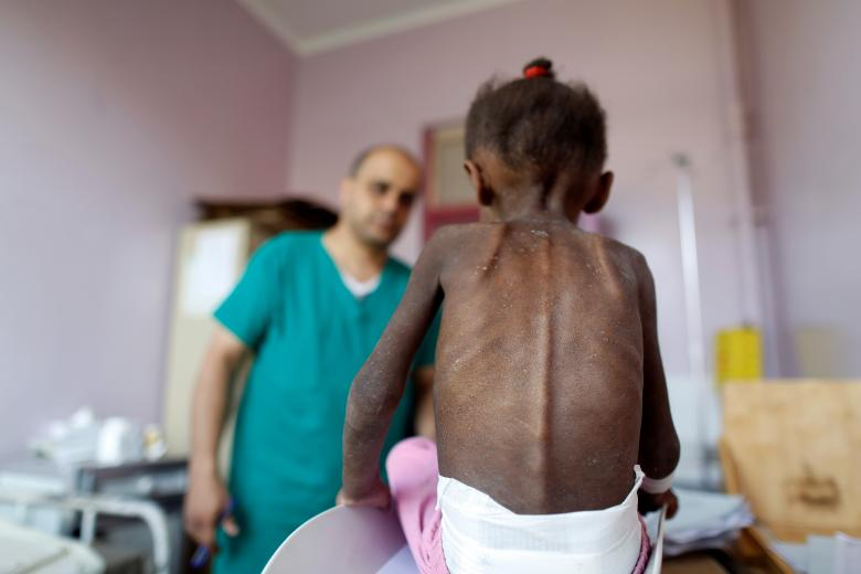 A nurse looks as he weighs a malnourished girl at a malnutrition treatment center in Sanaa, October 7, 2018.