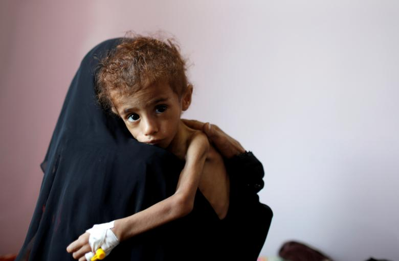 A woman holds a malnourished boy in a malnutrition treatment center at the al-Sabeen hospital in Sanaa, October 6, 2018.