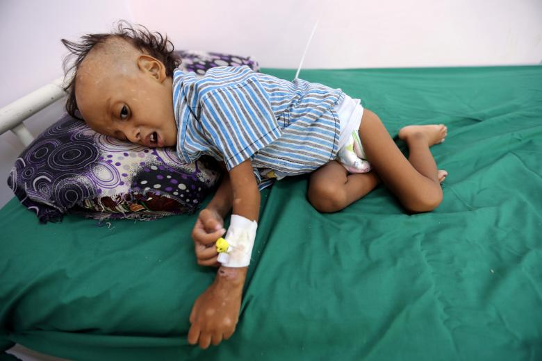 Jibril Mohammed Ali Al-Hakami, 2, lies on a bed at the al-Thawra hospital where he receives treatment for malnutrition in Hodeidah, November 17, 2018.