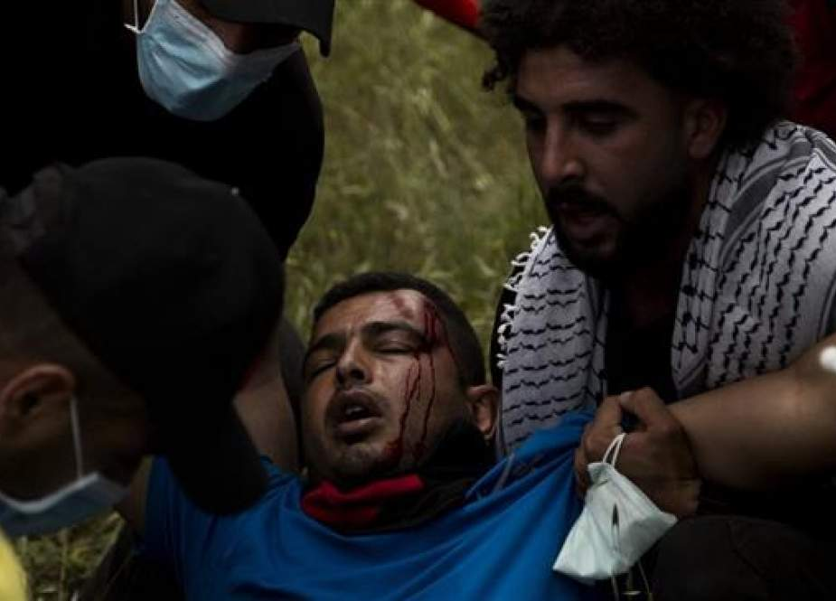 Israeli attack against peaceful Palestinian protesters north of the West Bank.jpg