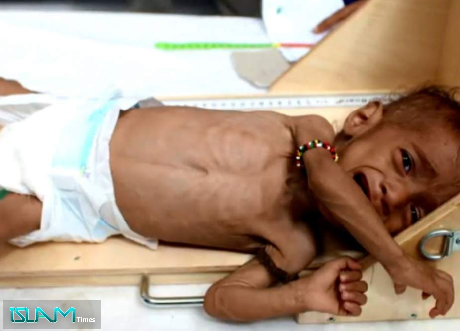 World Food Program Warned that Yemen Aid Lifeline Reaching 'Breaking Point'